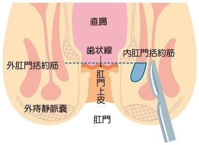 裂肛切除術、肛門ポリープ切除